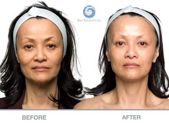 Non Surgical Facelifts Beauty Therapist Horsham
